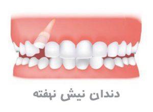 دندان نیش نهفته