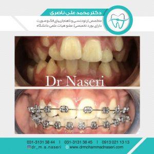 ردیف کردن دندانهای نامنظم در اصفهان