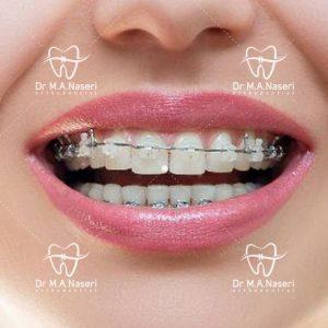 چگونه از دندان های خود مراقبت کنیم؟