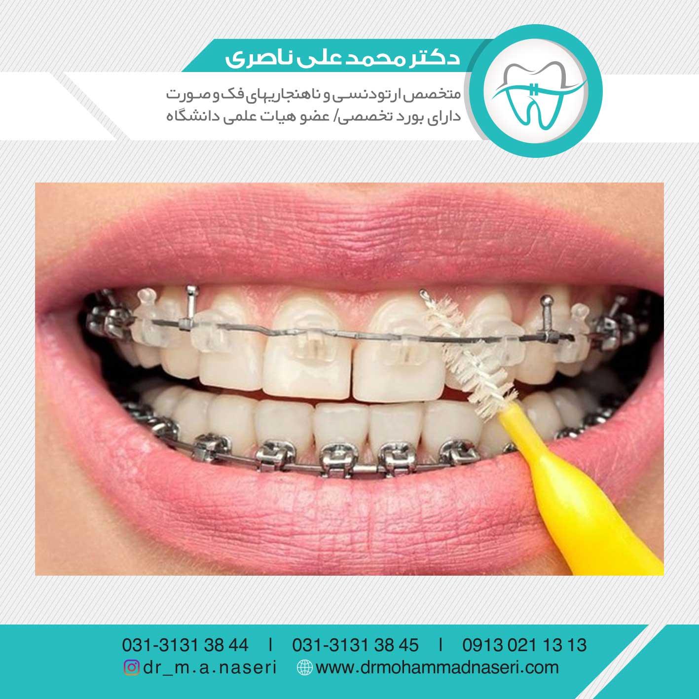 مراقبت از دندان ها در حین درمان ارتودنسی