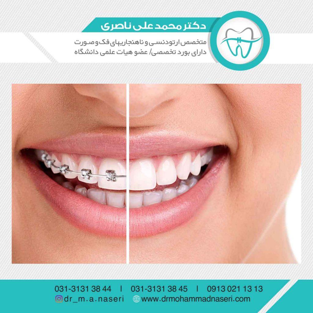 چرا باید دندان هایمان را ارتودنسی کنیم؟