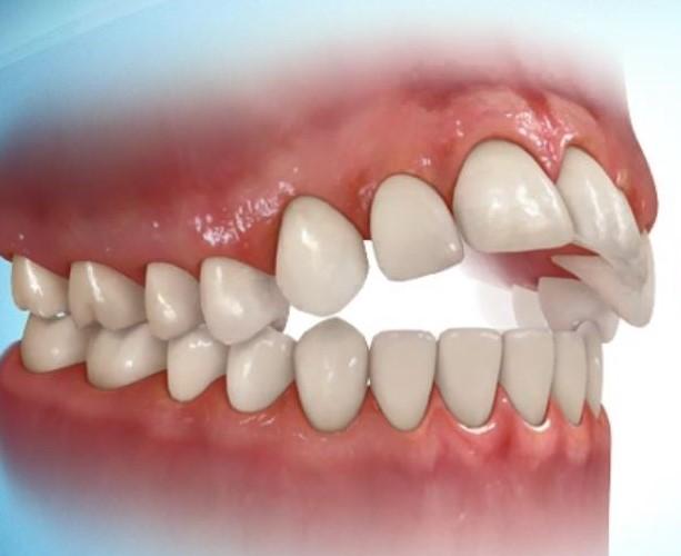 مال اکلوژن دندان ها