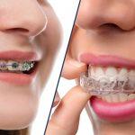 آیا ارتودنسی مینای دندان را ضعیف می کند ؟