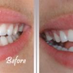 آشنایی با غیبت دندانی و فضای خالی بین دندان ها