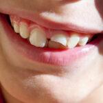 اقدامات بعد از شکستن دندان