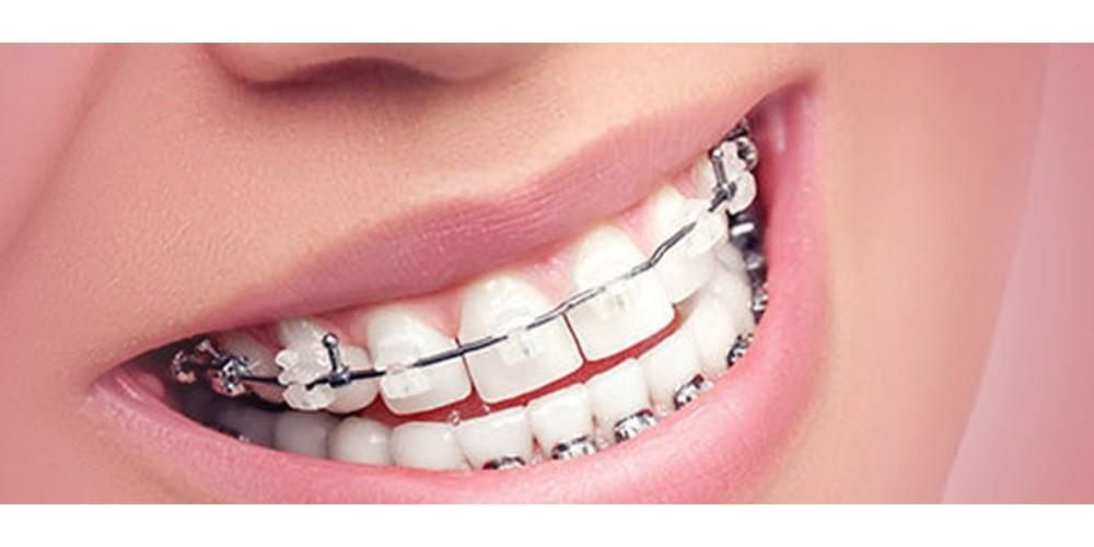شلوغی و تراکم دندان ها